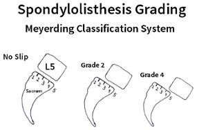grade 2 anterolisthesis